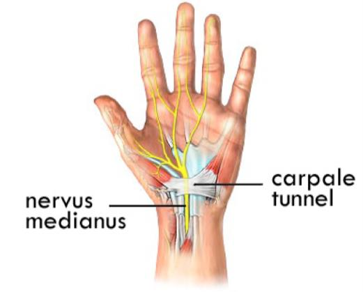 carpaal tunnel syndrome